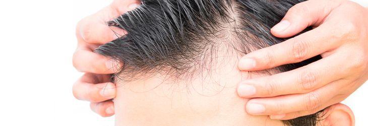 cabecera-mesoterapia-capilar